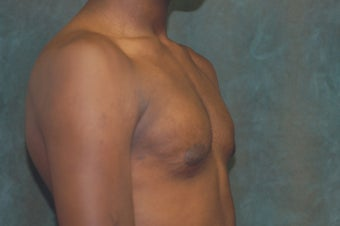 Male Breast Reduction 684663