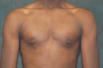 Male Breast Reduction after 684663