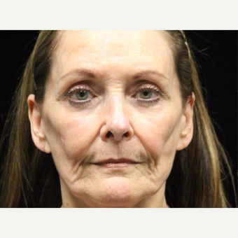 65-74 year old woman treated with Liquid Facelift before 3502977