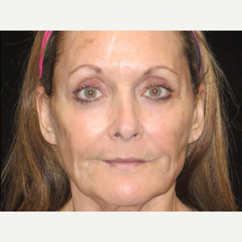 65-74 year old woman treated with Liquid Facelift after 3502977