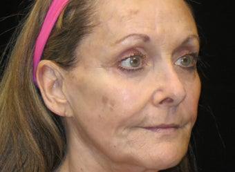 65-74 year old woman treated with Liquid Facelift 3502977