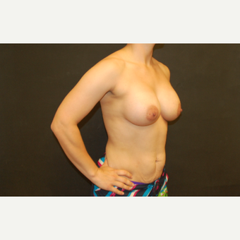 25-34 year old woman treated with Breast Implants after 3071696