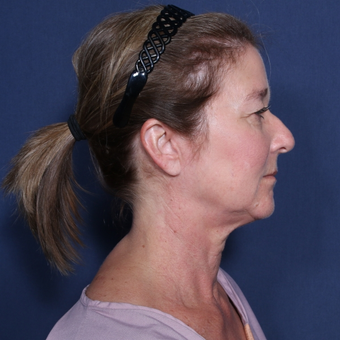 55-64 year old woman treated with Neck Lift before 3174862