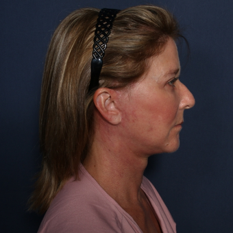 55-64 year old woman treated with Neck Lift after 3174862