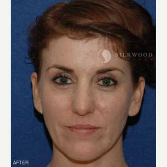 35-44 year old woman treated with Forehead Reduction after 2292345