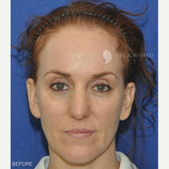 35-44 year old woman treated with Forehead Reduction before 2292345