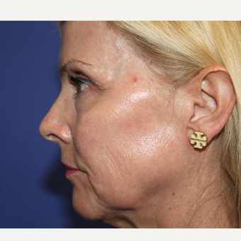 45-54 year old woman treated with Laser Resurfacing after 3770247