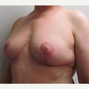 En Bloc Total Capsulectomy with Breast Implant Removal & Breast Lift after 3460816