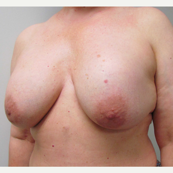 En Bloc Total Capsulectomy with Breast Implant Removal & Breast Lift before 3460816