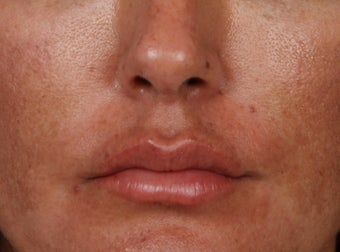 35-44 year old woman treated with Lip Augmentation after 3006198