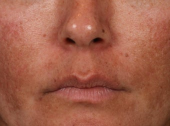 35-44 year old woman treated with Lip Augmentation before 3006198