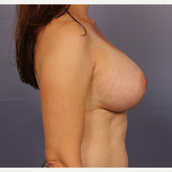 Breast lift with gumy bear implants after 3645957