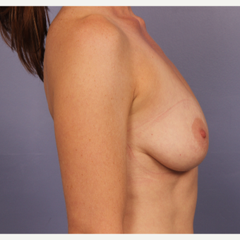 Breast lift with gumy bear implants before 3645957