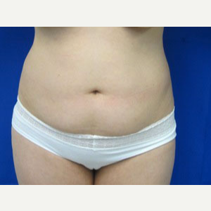 Liposuction before 3094139