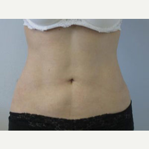 Liposuction after 3094139