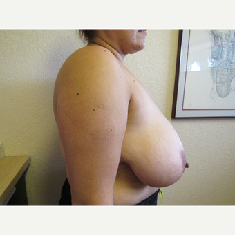 35-44 year old woman treated with Breast Reduction before 3412375