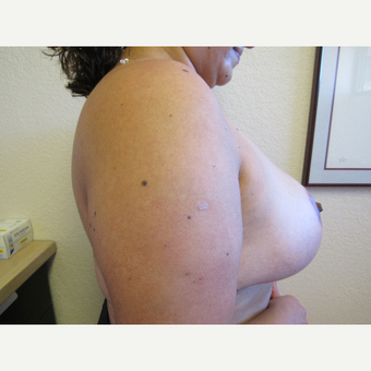 35-44 year old woman treated with Breast Reduction after 3412375