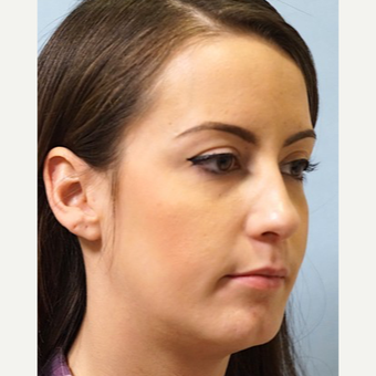 25-34 year old woman treated with Revision Rhinoplasty after 3686791