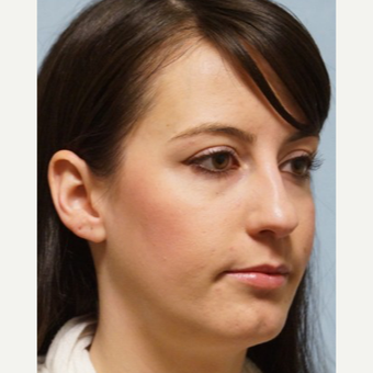 25-34 year old woman treated with Revision Rhinoplasty before 3686791