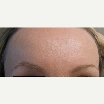 35-44 year old woman treated with Botox after 3321463