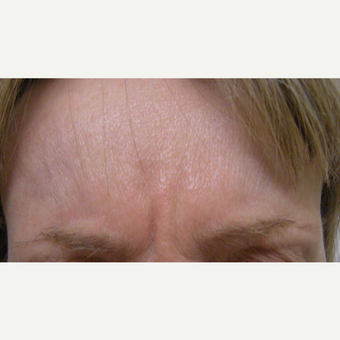 35-44 year old woman treated with Botox before 3321463