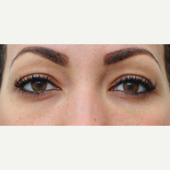 25-34 year old woman treated with Eye Bags Treatment after 3140424