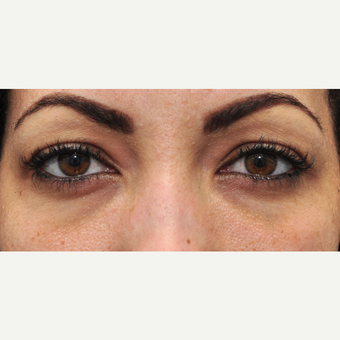 25-34 year old woman treated with Eye Bags Treatment before 3140424