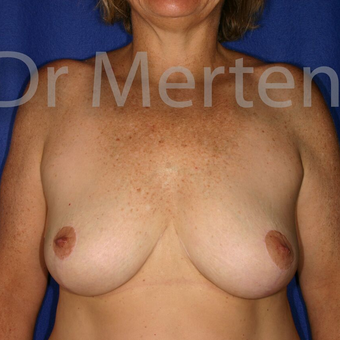 Breast Reduction after 3681318