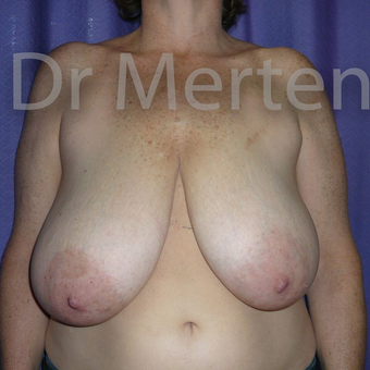 Breast Reduction before 3681318
