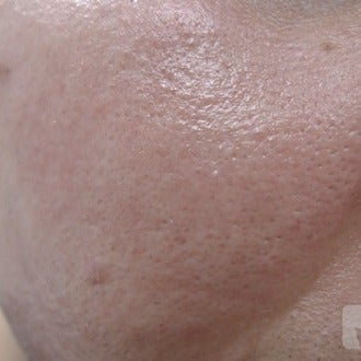 Open pores permanent treated with laser