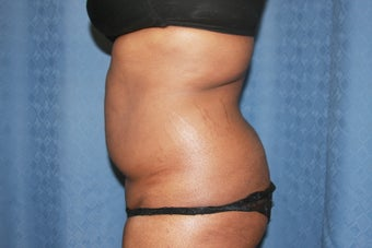 Tummy Tuck with Liposuction of Waistline 1100664