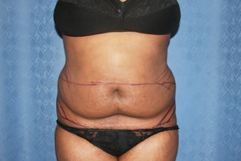 Tummy Tuck with Liposuction of Waistline before 1100664
