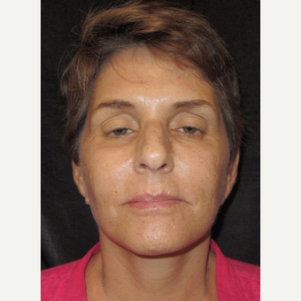 55-64 year old woman treated with Facelift after 3320677