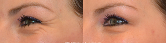 A Woman in her 20's treated with Botox for premature Crow's Feet wrinkles before 1610653