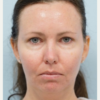 35-44 year old woman treated with Radiesse before 3710890