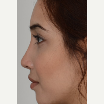 18-24 year old woman treated with Rhinoplasty after 3206990
