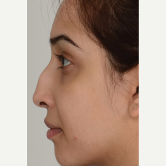 18-24 year old woman treated with Rhinoplasty before 3206990