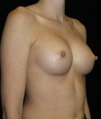 31 year old woman with asymmetry treated with Breast Augmentation 3093688