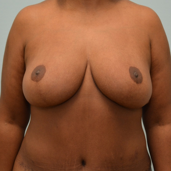 Breast lift on 5'7 mother of 3 who had last 100 pounds with lap-band surgery. after 3071212