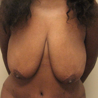 Breast lift on 5'7 mother of 3 who had last 100 pounds with lap-band surgery. before 3071212