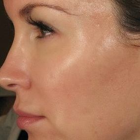 25-34 year old woman treated with Bella Skinpen microneedling