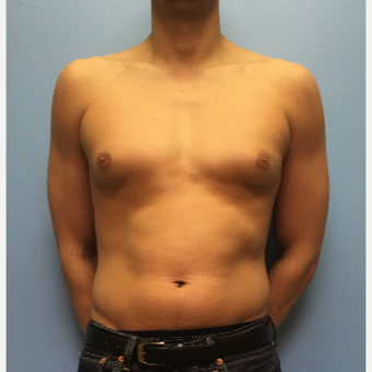 29 year old man treated with Male Breast Reduction before 3174550