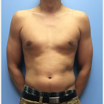 29 year old man treated with Male Breast Reduction after 3174550