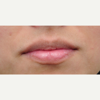 25-34 year old woman treated with Lip Augmentation before 3565002