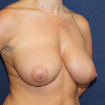 A Breast Lift was Something She Always Wanted before 3778109