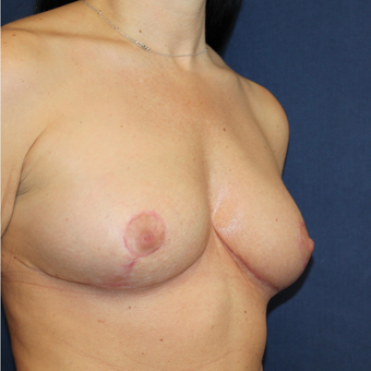A Breast Lift was Something She Always Wanted after 3778109