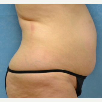 55 year old female liposuction achieved spectacular results before 3731805