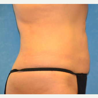 55 year old female liposuction achieved spectacular results after 3731805