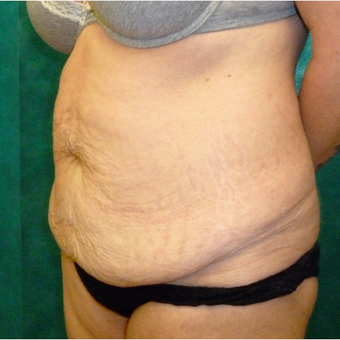 35-44 year old woman treated with Tummy Tuck before 3770730