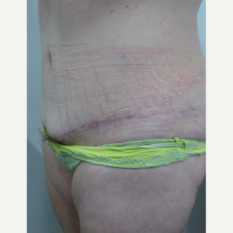 35-44 year old woman treated with Tummy Tuck after 3770730